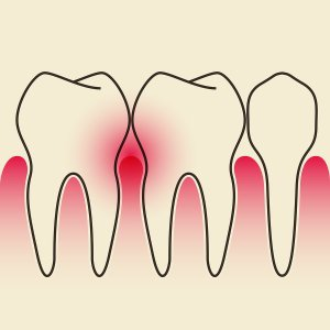 periodontal disease bloomingdale